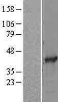 NBL1-15677 - SAE1 Lysate
