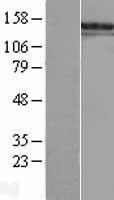 NBL1-15678 - SALL1 Lysate