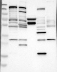 NBP1-80587 - Sal-like protein 3 (SALL3)