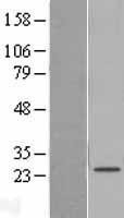 NBL1-15680 - SAMD12 Lysate
