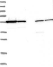 NBP1-84509 - SAMM50