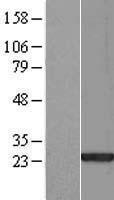 NBL1-15687 - SAP30L Lysate