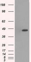 NBP1-47852 - MAPK12