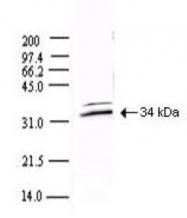 NBP1-78110 - SARS N