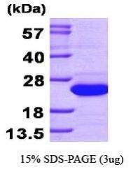 NBP1-30198 - SAT1