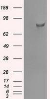 NBP1-47950 - SATB1