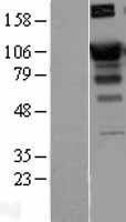 NBL1-15700 - SATB1 Lysate