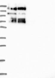 NBP1-83837 - SBNO1 / MOP3