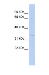 NBP1-60053 - SC5DL
