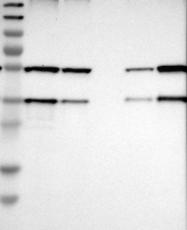 NBP1-89552 - SCAMP2