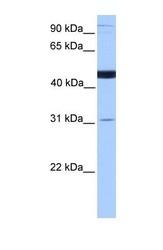 NBP1-60126 - SCCPDH
