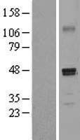 NBL1-14237 - SCDGFB Lysate