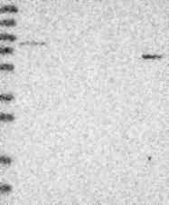 NBP1-89231 - SCIN