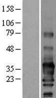 NBL1-15743 - SCN3B Lysate