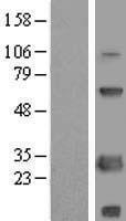 NBL1-15745 - SCNM1 Lysate