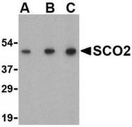 NBP1-77274 - SCO2