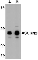 NBP1-77188 - Secernin-2 (SCRN2)