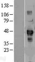NBL1-15763 - SDCCAG3 Lysate