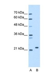 NBP1-58376 - SDF2