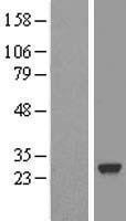 NBL1-15764 - SDF2 Lysate