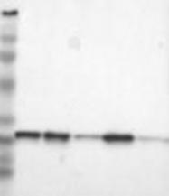 NBP1-87069 - SDHB