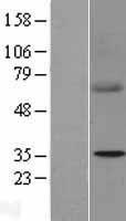 NBL1-15766 - SDHB Lysate