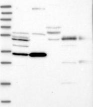 NBP1-87149 - SDR9C7