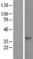 NBL1-15771 - SDSL Lysate