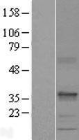NBL1-15775 - SEC22C Lysate