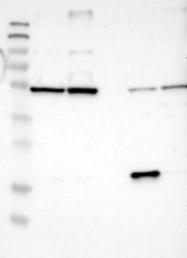 NBP1-84045 - SEC62 / TLOC1