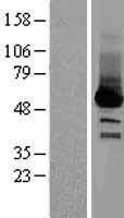NBL1-15791 - SELENBP1 Lysate
