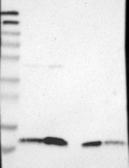 NBP1-86120 - Selenoprotein K (SELK)