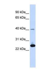 NBP1-59042 - Selenoprotein S (SELS)