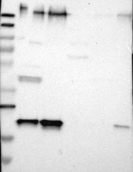 NBP1-89558 - Selenoprotein S (SELS)