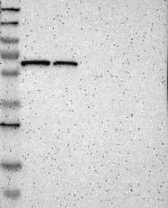 NBP1-89553 - SENP1