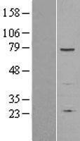NBL1-15808 - SENP1 Lysate