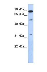 NBP1-55439 - SENP5