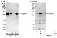 NBP1-50027 - SENP7