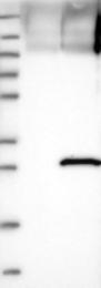 NBP1-85259 - SENP8