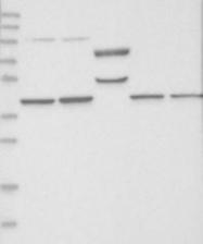 NBP1-87008 - SEPHS1