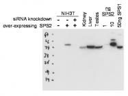 NBP1-77776 - Adenosine deaminase (ADA)