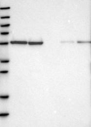 NBP1-85660 - SERBP1 / PAIRBP1