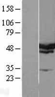 NBL1-15821 - SERBP1 Lysate