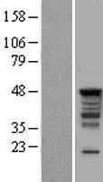 NBL1-15823 - SERBP1 Lysate