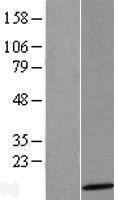 NBL1-15832 - SERP2 Lysate