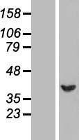 NBL1-15842 - SERPINB1 Lysate