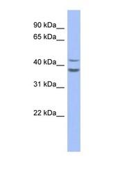 NBP1-59086 - SERPINB2 / PAI2