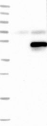NBP1-81541 - SERTAD2