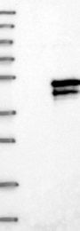 NBP1-81542 - SERTAD2