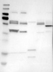 NBP1-85029 - Sestrin-2 (SESN2)